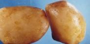 Камни в мочевом пузыре: способы лечения.