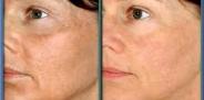Биоревитализация лица. Что это?