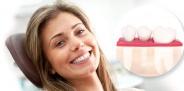 Какие зубные импланты лучше ставить