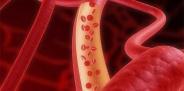 Осложнение инфаркта: аневризма сердца